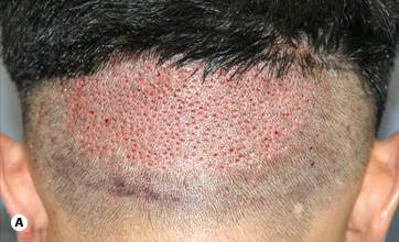Figure 29.18A - FUE Immediately after harvesting 600 grafts