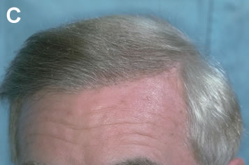 Art of Repair in Surgical Hair Restoration Pt I - Same male patient after one session of follicular units transplanted directly into the scarred tissue