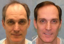 Hair Transplant Patient RAB