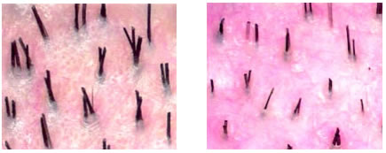 Diagnosis of Hair Loss in Men