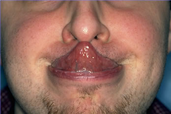 Scalp Laxity Paradox - The ability to touch the tip of the nose with the tongue (Gorlin's sign) is seen in 50% of patients with EDS