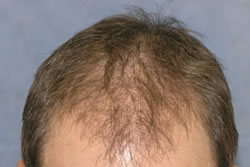 Hair Transplantation Photos