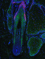 Miniaturized human hair follicle shows concentration of Prostaglandin D2 (in green). Credit: Garza and Cotsarelis/Penn Medicine)